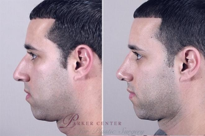 Rhinoplasty Case 952 Before & After View #5 | Paramus, NJ | Parker Center for Plastic Surgery