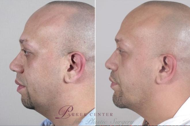 Rhinoplasty Case 953 Before & After View #5 | Paramus, NJ | Parker Center for Plastic Surgery