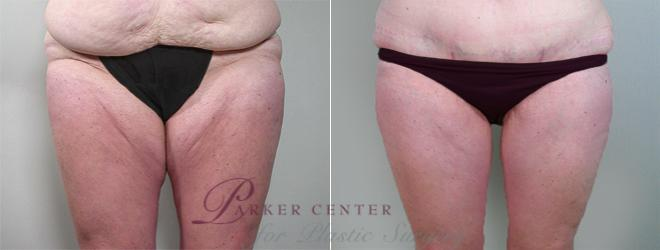 Thigh Lift Case 817 Before & After View #1 | Paramus, NJ | Parker Center for Plastic Surgery