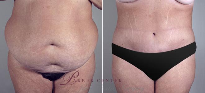 Tummy Tuck Case 687 Before & After View #1 | Paramus, NJ | Parker Center for Plastic Surgery