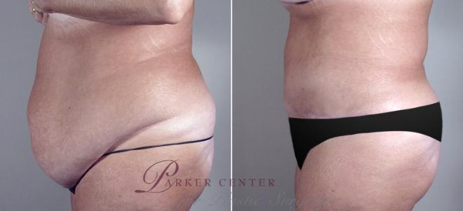 Tummy Tuck Case 687 Before & After View #2 | Paramus, NJ | Parker Center for Plastic Surgery