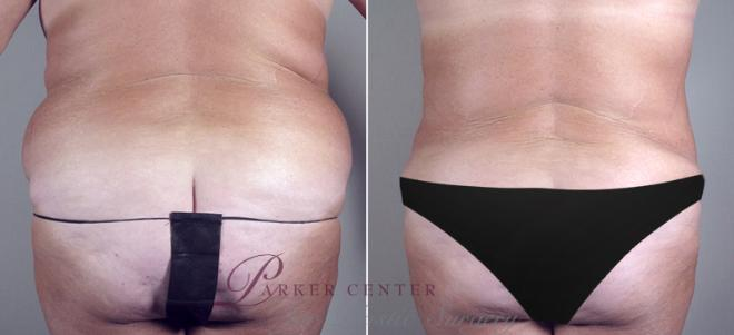 Tummy Tuck Case 687 Before & After View #3 | Paramus, NJ | Parker Center for Plastic Surgery