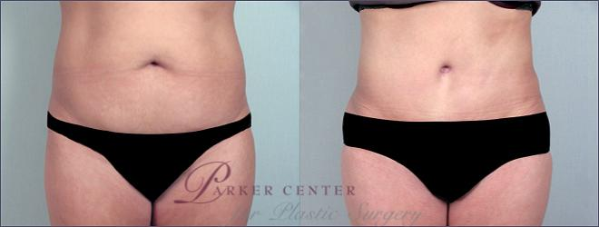 Tummy Tuck Case 691 Before & After View #1 | Paramus, NJ | Parker Center for Plastic Surgery