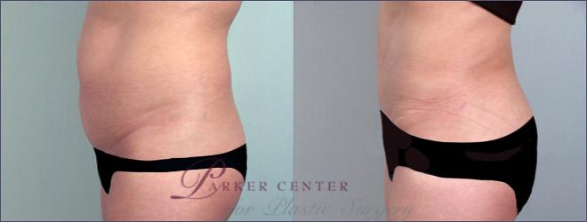 Tummy Tuck Case 691 Before & After View #2 | Paramus, NJ | Parker Center for Plastic Surgery