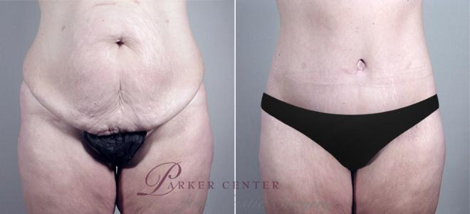 Tummy Tuck Case 693 Before & After View #1 | Paramus, NJ | Parker Center for Plastic Surgery