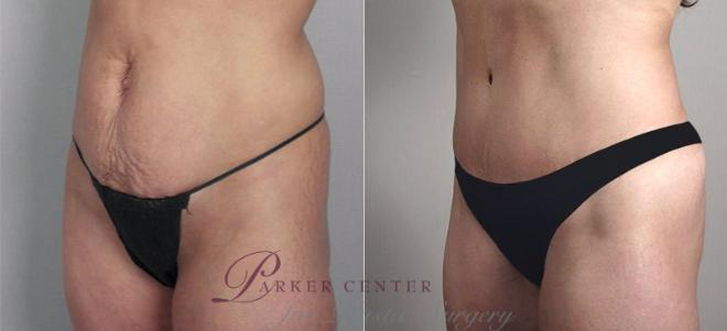 Tummy Tuck Case 697 Before & After View #1 | Paramus, NJ | Parker Center for Plastic Surgery