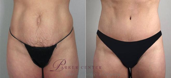 Tummy Tuck Case 697 Before & After View #2 | Paramus, NJ | Parker Center for Plastic Surgery