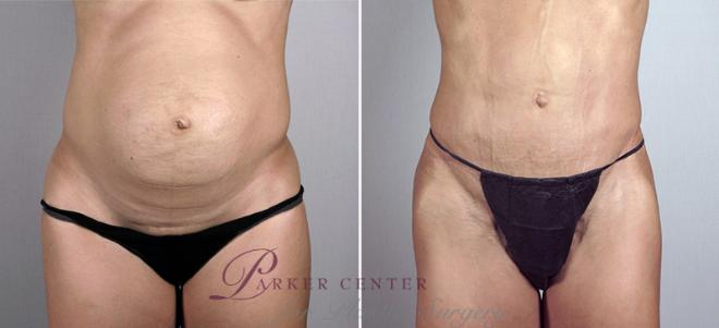 Tummy Tuck Case 699 Before & After View #1 | Paramus, NJ | Parker Center for Plastic Surgery