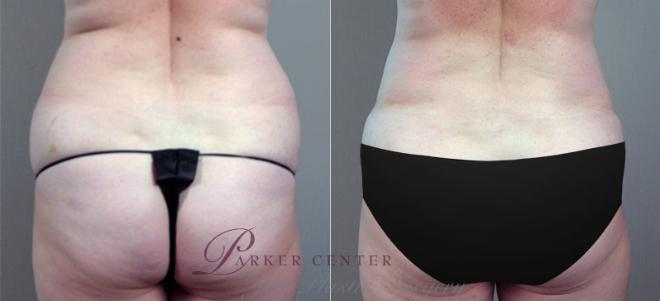 Tummy Tuck Case 703 Before & After View #3 | Paramus, NJ | Parker Center for Plastic Surgery