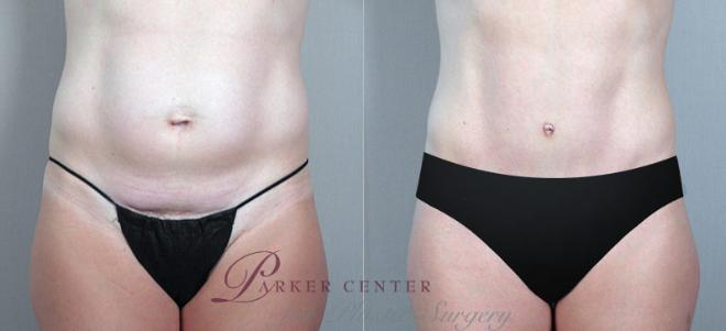 Tummy Tuck Case 704 Before & After View #3 | Paramus, NJ | Parker Center for Plastic Surgery