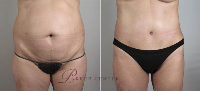 Tummy Tuck Case 715 Before & After View #1 | Paramus, NJ | Parker Center for Plastic Surgery