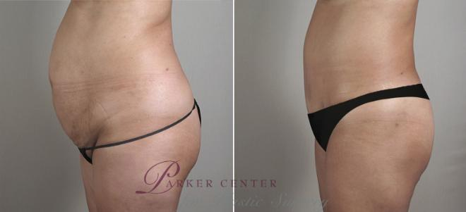 Tummy Tuck Case 715 Before & After View #2 | Paramus, NJ | Parker Center for Plastic Surgery