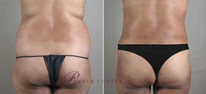 Tummy Tuck Case 715 Before & After View #3 | Paramus, NJ | Parker Center for Plastic Surgery