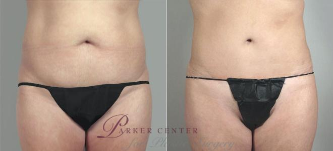 Tummy Tuck Case 717 Before & After View #1 | Paramus, NJ | Parker Center for Plastic Surgery