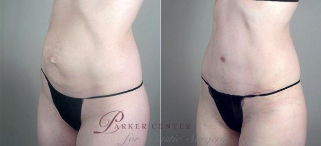 Tummy Tuck Case 720 Before & After View #2 | Paramus, NJ | Parker Center for Plastic Surgery