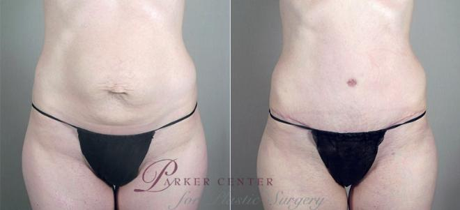 Tummy Tuck Case 720 Before & After View #3 | Paramus, NJ | Parker Center for Plastic Surgery