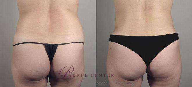 Tummy Tuck Case 721 Before & After View #3 | Paramus, NJ | Parker Center for Plastic Surgery