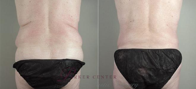 Tummy Tuck Case 723 Before & After View #3 | Paramus, NJ | Parker Center for Plastic Surgery