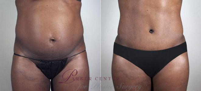 Tummy Tuck Case 729 Before & After View #1 | Paramus, NJ | Parker Center for Plastic Surgery