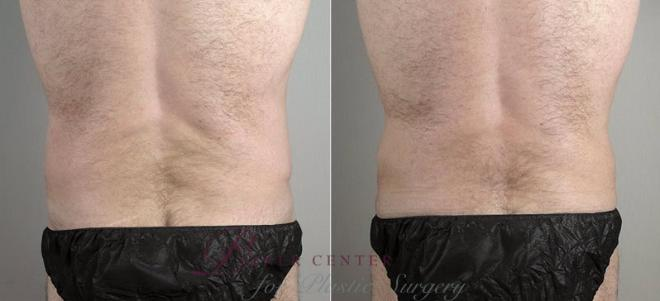 Tummy Tuck Case 737 Before & After View #3 | Paramus, NJ | Parker Center for Plastic Surgery