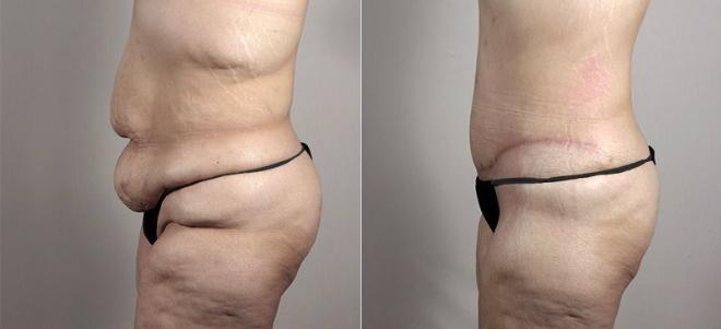 Tummy Tuck Case 739 Before & After View #2 | Paramus, NJ | Parker Center for Plastic Surgery