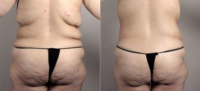 Tummy Tuck Case 739 Before & After View #3 | Paramus, NJ | Parker Center for Plastic Surgery