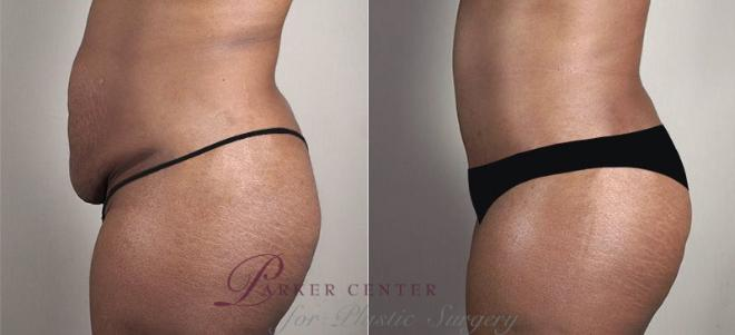 Tummy Tuck Case 740 Before & After View #2 | Paramus, NJ | Parker Center for Plastic Surgery