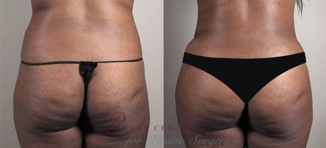 Tummy Tuck Case 740 Before & After View #3 | Paramus, NJ | Parker Center for Plastic Surgery