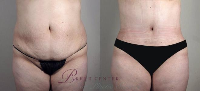Tummy Tuck Case 741 Before & After View #1 | Paramus, NJ | Parker Center for Plastic Surgery