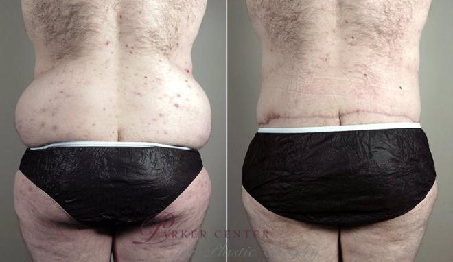 Tummy Tuck Case 743 Before & After View #3 | Paramus, NJ | Parker Center for Plastic Surgery