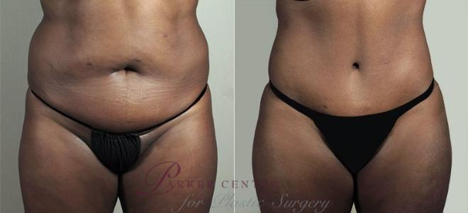 Tummy Tuck Case 747 Before & After View #1 | Paramus, NJ | Parker Center for Plastic Surgery