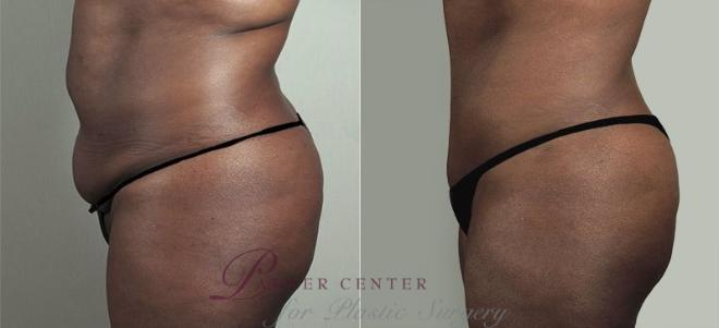 Tummy Tuck Case 747 Before & After View #2 | Paramus, NJ | Parker Center for Plastic Surgery