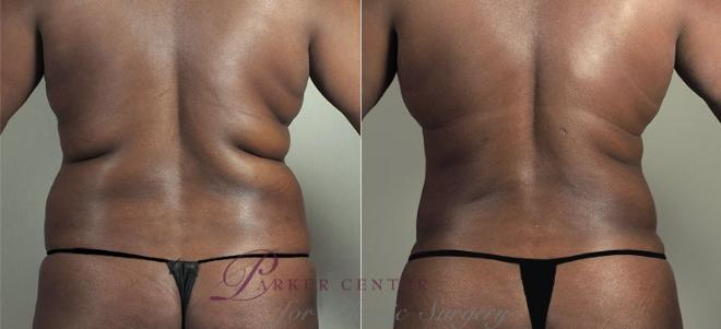 Tummy Tuck Case 747 Before & After View #3 | Paramus, NJ | Parker Center for Plastic Surgery