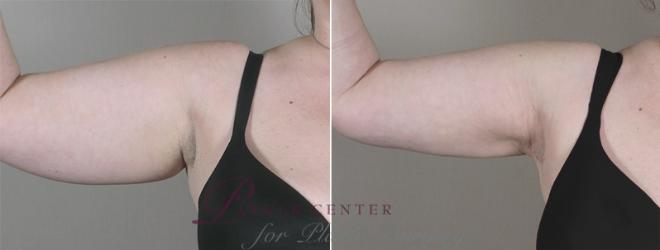 Upper Arm Rejuvenation Case 827 Before & After View #1 | Paramus, NJ | Parker Center for Plastic Surgery