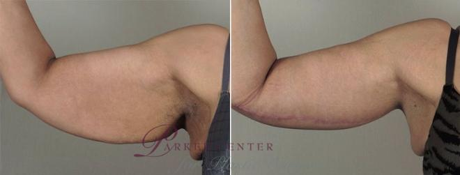 Upper Arm Rejuvenation Case 830 Before & After View #1 | Paramus, NJ | Parker Center for Plastic Surgery