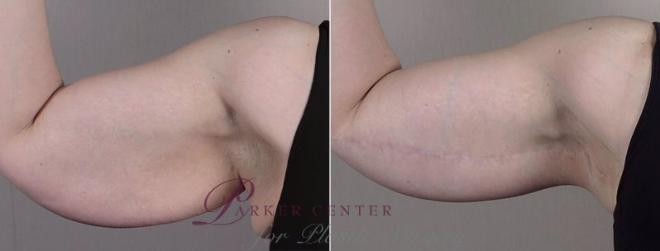 Upper Arm Rejuvenation Case 833 Before & After View #1 | Paramus, NJ | Parker Center for Plastic Surgery