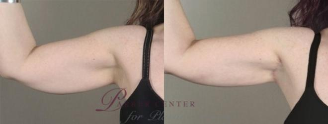 Upper Arm Rejuvenation Case 933 Before & After View #5 | Paramus, NJ | Parker Center for Plastic Surgery